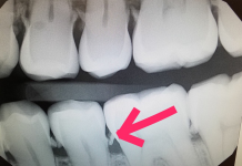 Xray showing tooth decay